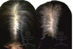 Vlasová mezoterapie - fotka před - Mediestetik, skupina klinik