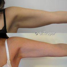 Liposukce - fotka před - MUDr. Evžen Trupar Ph.D.