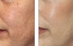 Chemický peeling - fotka před - Klinika YES VISAGE - klinika estetické medicíny a plastické chirurgie