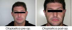Operazione orecchie (Otoplastica) - Foto del prima - Dott. Alberto Peroni Ranchet Esperto per la Chirugia Estetica del Consiglio Superiore della Sanità