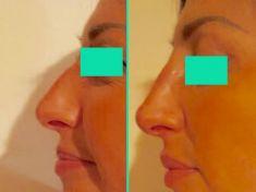 Rinoplastica - Foto del prima - Dott.ssa Moio Mariagrazia