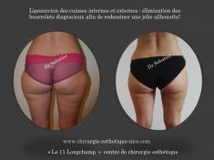 Liposuccion - Cliché avant - Dr Henry Sabatier