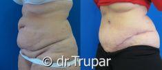 Abdominoplastika (Operace břicha) - fotka před - MUDr. Evžen Trupar Ph.D.