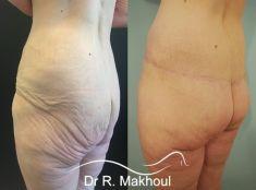 Body lift - Cliché avant - Dr Rani Makhoul