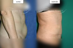 Abdominoplastia - Dermolipectomía abdominal
