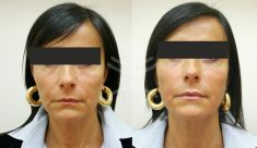 Non Surgical Lift - Photo before - Mediestetik, skupina klinik