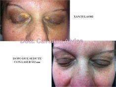 Procedure laser in dermatologia estetica  - Foto del prima - Dott. Alvise Cavallini MD, PhD