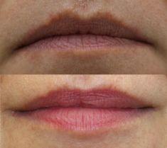Lip augmentation - cheiloplasty - Photo before - ARS ESTETICA – Klinika Medycyny Estetycznej i Laseroterapii
