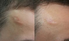 Fractional Laser Resurfacing - Photo before - ARS ESTETICA – Klinika Medycyny Estetycznej i Laseroterapii