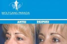 Cirugía de párpados (Blefaroplastia) - Foto Antes de - Dr. Wolfgang Parada Wolfgang Parada