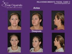 Lifting facial - Foto Antes de - Dr. Einar Fernando Oquendo Villacres