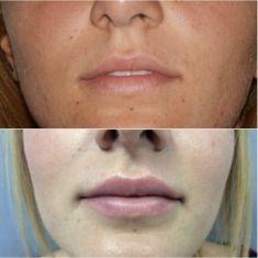 Aumento labbra con Permalip - Foto del prima