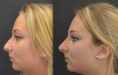 Rhinoplastie médicale - Injection d