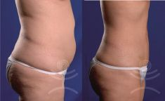 Injection lipolysis - Photo before - Mediestetik, skupina klinik