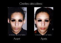 Otoplastie (Chirurgie esthétique des oreilles) - Cliché avant - Dr Pierre de Taddeo
