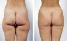 Liposukce tumescentní - fotka před - Esthé a. s. - klinika plastické chirurgie