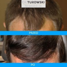- Photo before - Dr Turowski Hair Restoration Clinic