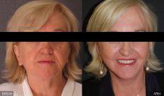 BareAesthetics Cosmetic Surgery Clinics - Photo before - BareAesthetics Cosmetic Surgery Clinics