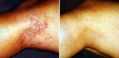 Spider veins laser removal (redness, birh marks) - Photo before - Dr. Dobos Calin