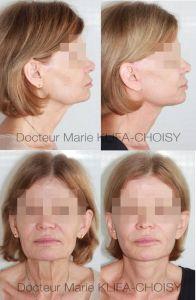 Dr Marie Klifa-Choisy - Cliché avant - Dr Marie Klifa-Choisy
