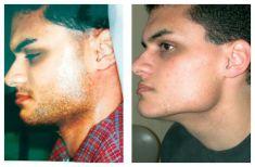 ART&VEN - žilní chirurgie - fotka před - ART&VEN - žilní chirurgie