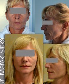 Facelift, SMAS facelifting - Shortscar facelift, vyhladenie vrások najma v dolnej tretine tváre.