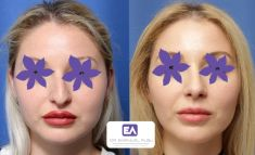 Dr. Emanuel Albu - Photo before - Dr. Emanuel Albu
