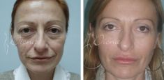 Antiaging - Photo before - Violeta Skorobać Asanin MD, PhD