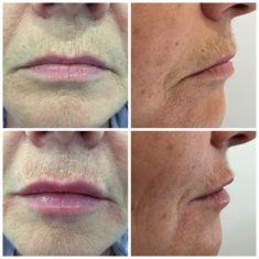 Augmentation des lèvres (acide hyaluronique) - résultat immédiat au Volbella une réaction inflammatoire peut survenir dans les 48 heures qui suivent. Remarquez la commissure labiale qui s