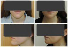 Operacje plastyczne brody  - Zdjęcie przed - dr n. med. Tomasz Dębski