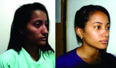 Cirugía de la nariz (Rinoplastia) - Foto Antes de - Dr. Jose David Villafañe Tejeda