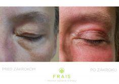 Operácia očných viečok (Blepharoplastika) - Fotka pred - Plastická chirurgia - Inštitút zdravia a krásy FRAIS