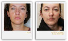 Usuwanie przebarwień i zmian barwnikowych - Usuwanie przebarwień - po dwóch zabiegach z użyciem kwasu ferulowego