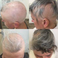 Léčba vypadávání vlasů - fotka před - CLINICAL HAIR&HEALTH Vlasové centrum a klinika zdraví