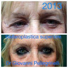 Blefaroplastica - blefaroplastica superiore