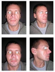 Profiloplastyka twarzy (implantaty) - Zdjęcie przed