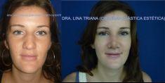 Dra. Lina Triana - Foto Antes de - Dra. Lina Triana