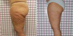 Liposuction alternative – non-invasive fat and cellulite removal - Photo before - Brandeis Clinic by Lucie Kalinová