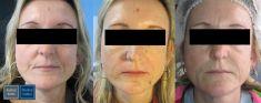 Odstranění znamének, kožních výrůstků - fotka před - Medical Institut Plzeň