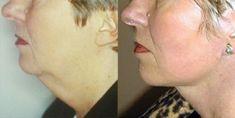 Lifting du visage - Cliché avant - Dr Philippe Kestemont