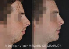 Rhinoplastie - Rhinoplastie et ostéotomie mandibulaire d