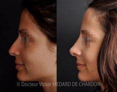 Rhinoplastie médicale - Cliché avant - Docteur Victor Medard de Chardon