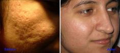 Laser Scar Treatment - Photo before - Azim Jahangir Khan M.D.