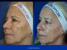 Eliminación de manchas oscuras con láser - Foto Antes de - Dr. Fabian Peréz Rivera