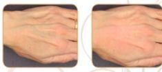 PRP – Plazma terapia (Drakula terapia) - Fotka pred - ESSUR Clinic