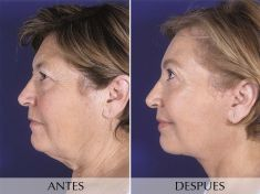Lifting facial - Foto Antes de - Clínica Planas