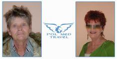 Facelift, Lifting twarzy (podciąganie powłok twarzy) - Zdjęcie przed - POLMED TRAVEL
