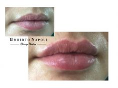 Aumento labbra - Foto del prima - Dott. Umberto Napoli