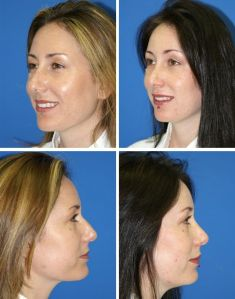 Rhinoplasty (Nose Job) - Photo before - M.D., F.A.C.S. Bernard A. Shuster