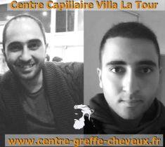 Greffe de cheveux - Cliché avant - Centre Capillaire Villa La Tour